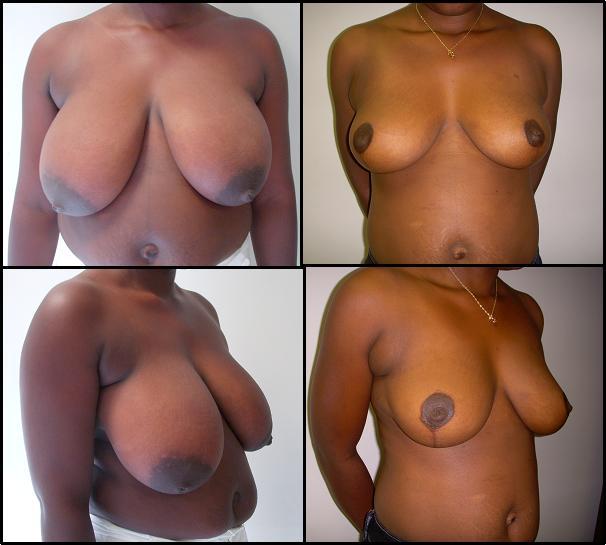 Penis plastische Chirurgie Bilder